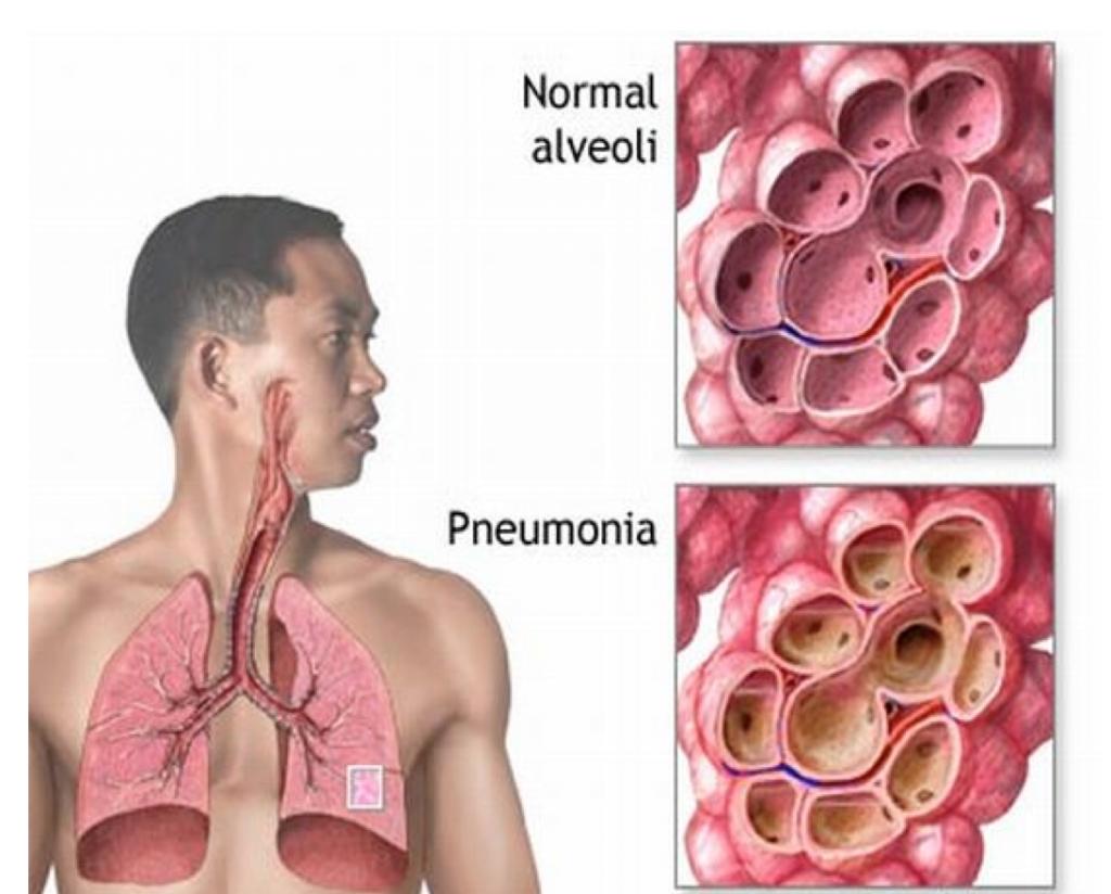Как отличить пневмонию от ОРВИ