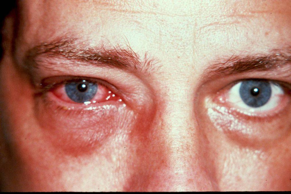 Глазной грипп