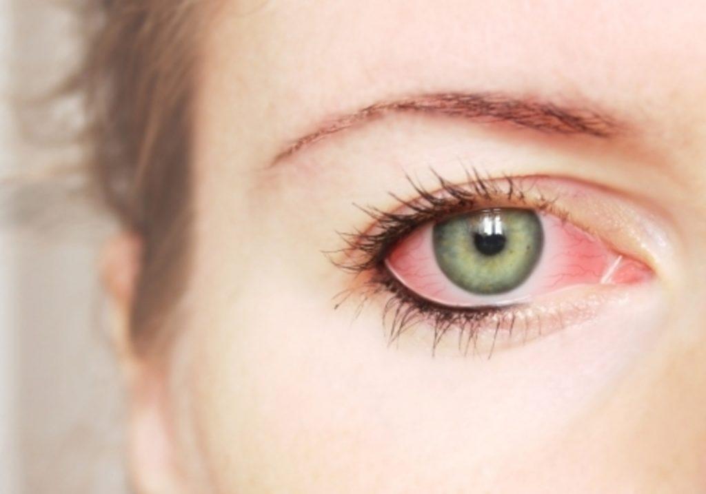 Красные глаза при ОРВИ