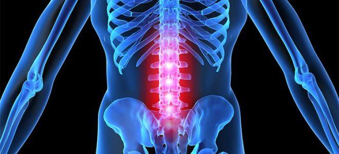 Симптомы и лечение хондроза поясничного отдела позвоночника
