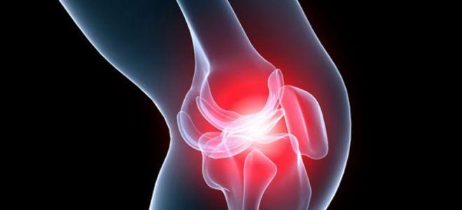 Как вылечить остеохондроз коленного сустава