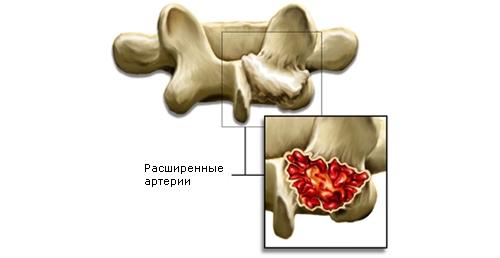 Схема аневризматической кисты
