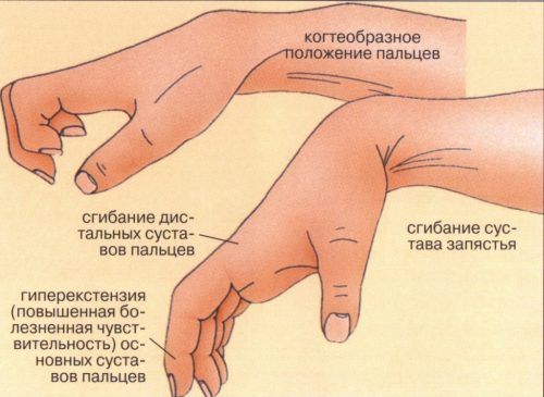 Мышечная контрактура при анкилозе суставов