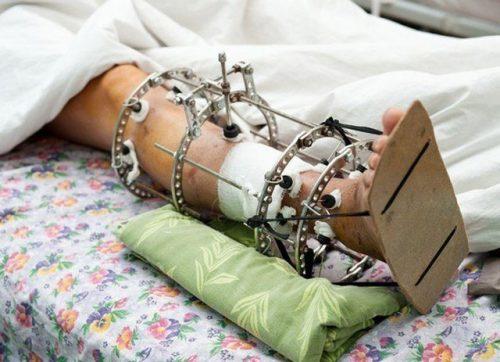 Аппарат Илизарова для фиксации костей