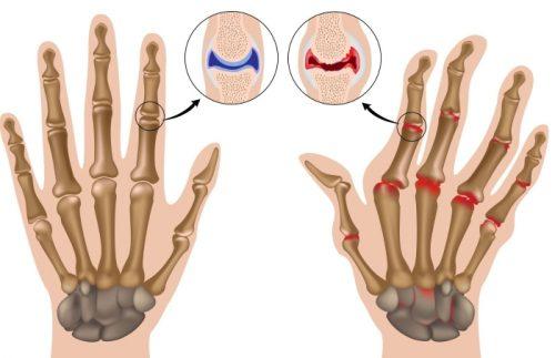 Артрит суставов кистей и пальцев рук