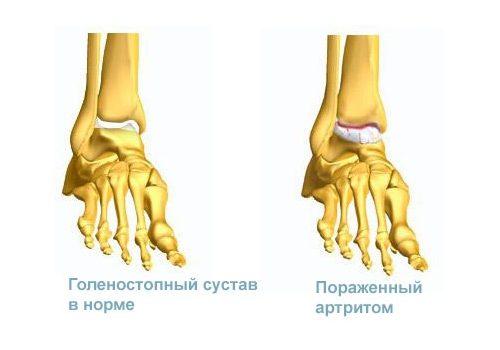 Проблема артрита голеностопного сустава