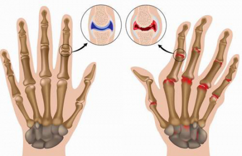 Артрит кистей рук