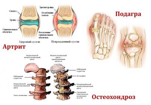 Артрит, подагра и остеохондроз
