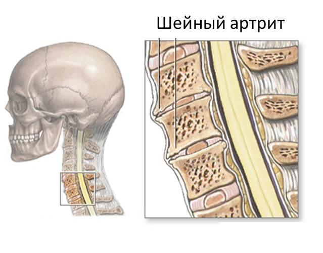 Артрит шейного отдела позвоночника