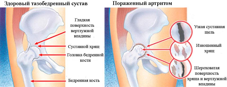 Изменения при артрите тазобедренного сустава