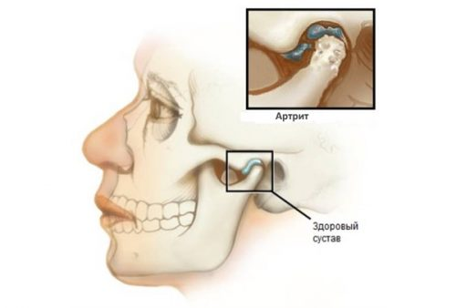 Схема артрита височно-нижнечелюстного сустава