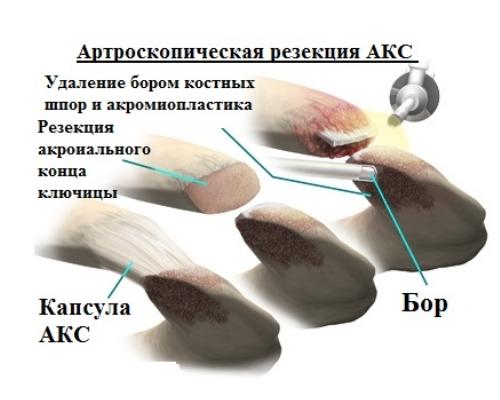 Артроскопическая резекция АКС