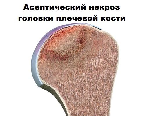 Некроз головки плечевой кости
