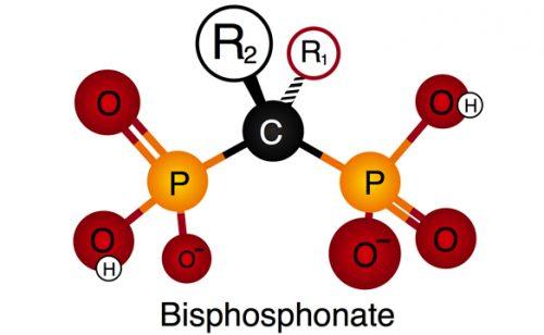 Препараты бисфосфонаты для лечения остеопороза
