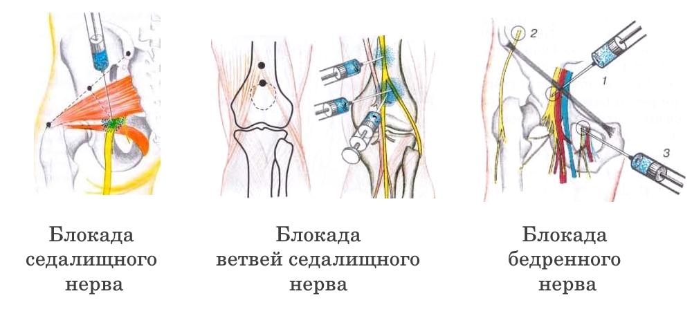 Обезболивающие блокады нервов ноги