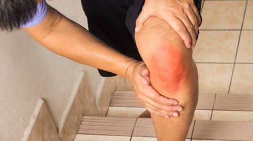 Возникновение боли под коленом