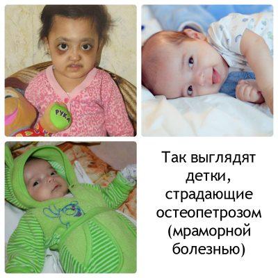 Фото детей с болезнью Альберс-Шенберга