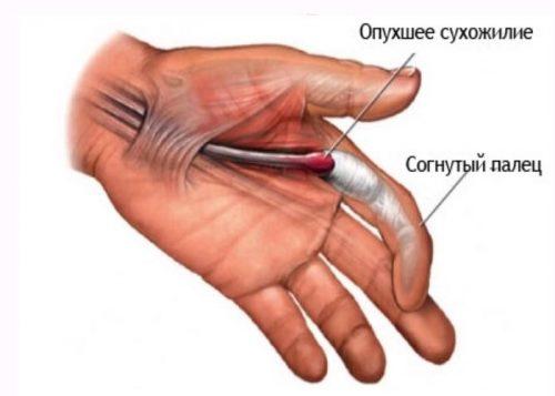 Опухание сухожилия пальца