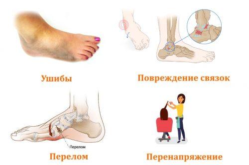 Боли в ступнях вследствие травм