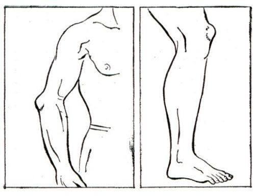 Бурсит коленного и локтевого сустава