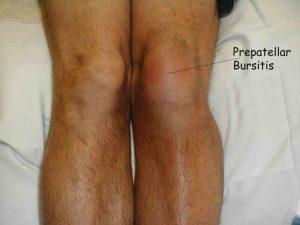 Покраснение и припухлость при бурсите коленного сустава