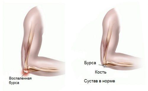 Изменения при бурсите локтевого сустава