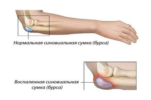 Схема бурсита локтевого сустава