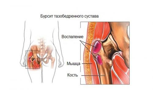 Проблема бурсита тазобедренного сустава