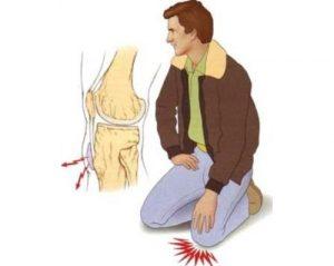 Бурсит при давлении на колено