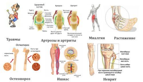 Частые причины боли в ноге
