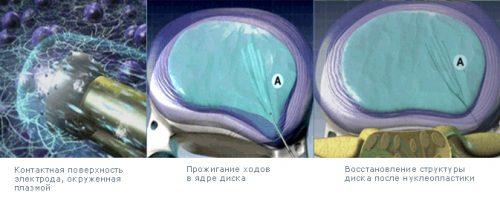Чрезкожная холодноплазменная нуклеопластика