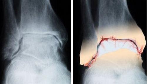 Артроз голеностопного сустава на рентген снимке