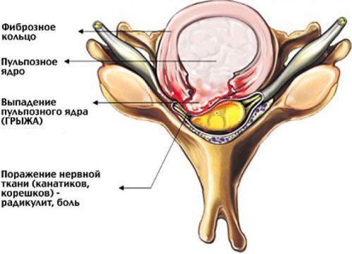 Дегенеративный стеноз
