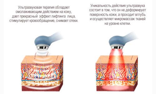 Действие ультразвуковой терапии