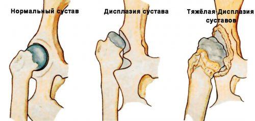 Развитие дисплазии тазобедренного сустава