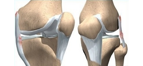 Дисторсия связок коленного сустава