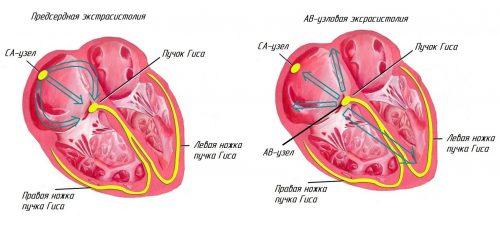 Экстрасистолия сердца человека