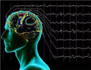 Электроэнцефалография сосудов мозга