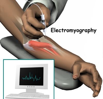 Электромиография мышц