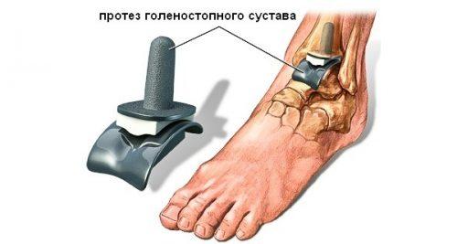 Эндопротез голеностопного сустава