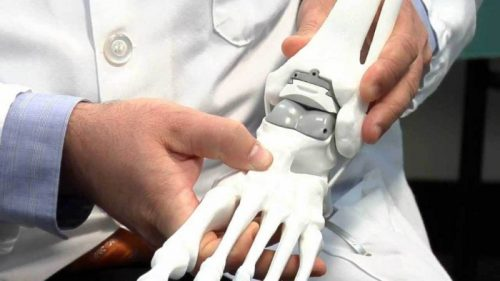 Эндопротезирование или замена голеностопного сустава