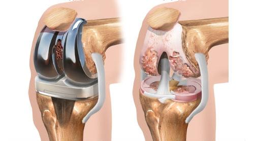 Эндопротезирование (артропластика) коленного сустава