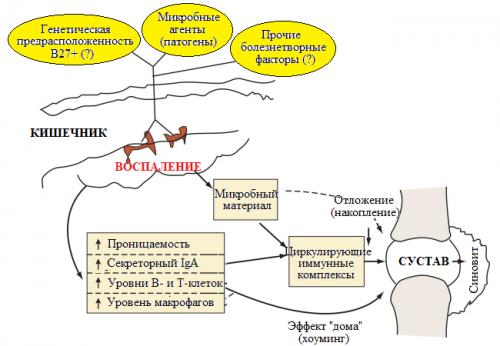 Энтеропатический артрит