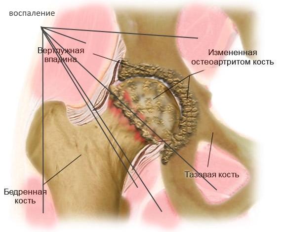 Энтезопатия тазобедренных суставов на фоне артрита