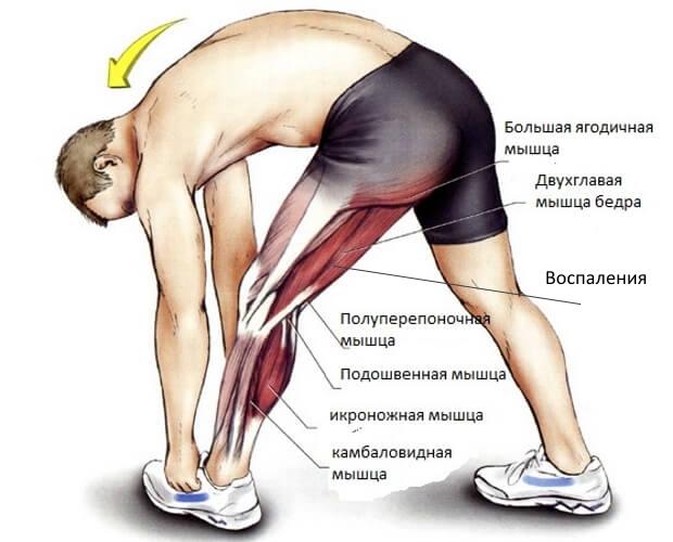 Энтезопатия мышц, сухожилий и связок