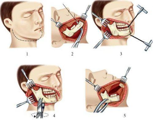 Этапы операции резекции нижней челюсти с вычленением в суставе