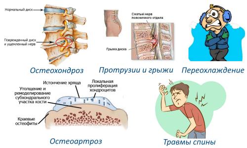 Факторы люмбоишиалгии