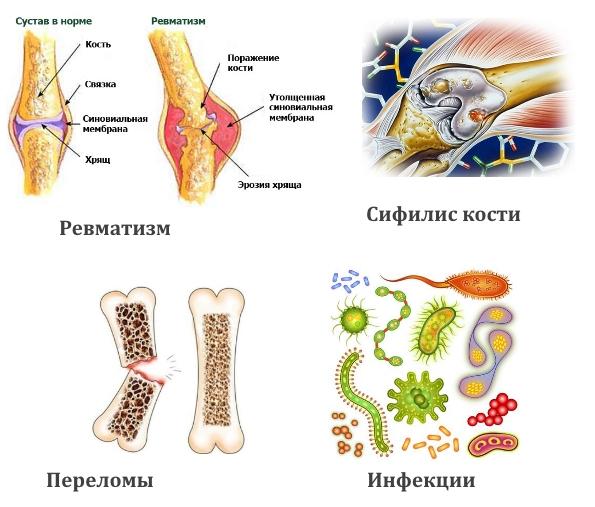 Факторы появления остеобластомы
