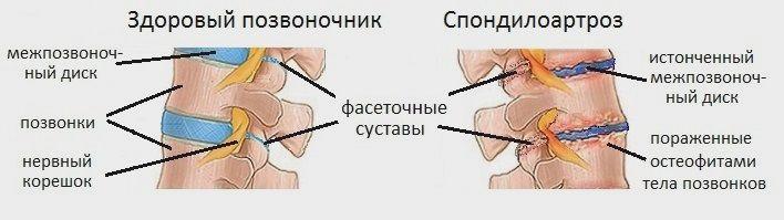 Фасеточный синдром