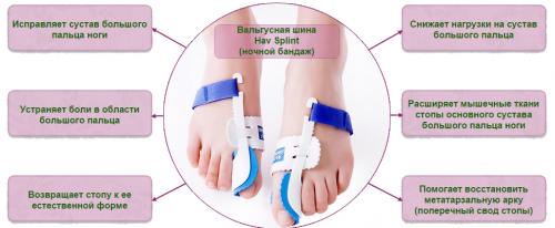 Преимущества ночного бандажа от косточки на ноге